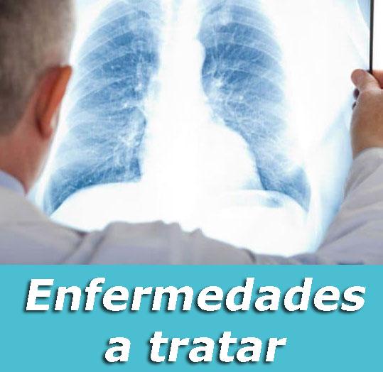enfermedades a tratar especialidades clinica respiratoria respira mejor sant cugat y sabadell